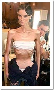 Anorexic model