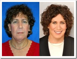 Woman before and after plastic surgery