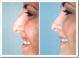 Woman's profile before and after plastic surgery