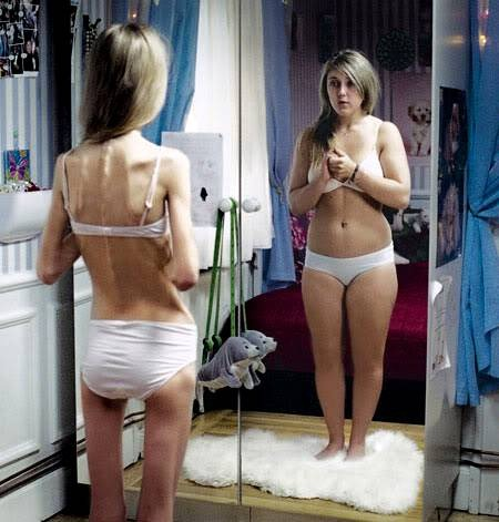 Anorexia: How to stop worrying